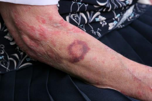 Treatment and Prevention of Elderly Bruising
